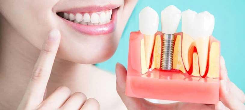 Sharma Dental Clinic & Implant Centre